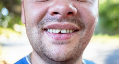 Man with chipped front tooth