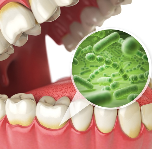 Animated smile with closeup of bacteria